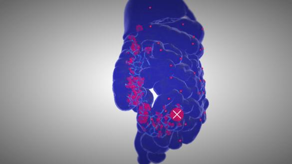 Apoptosis jeu vidéo simulation cancer